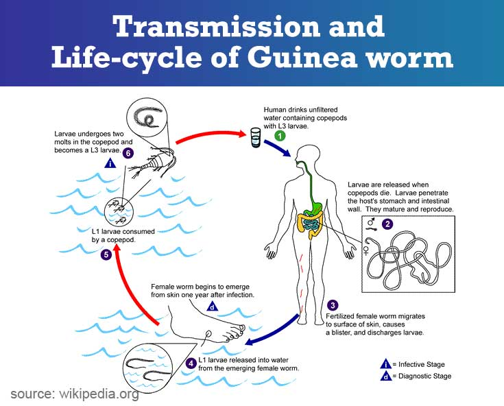 Dracunculiasis | Guinea-worm Disease - Symptoms, Diagnosis
