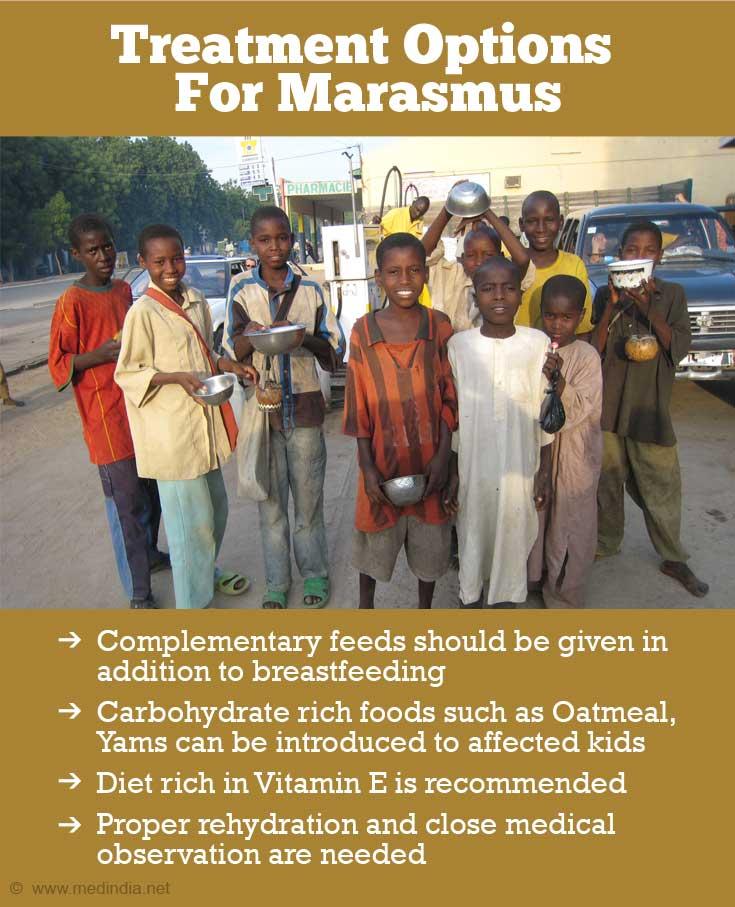 Marasmus Protein Energy Malnutrition Causes Symptoms Diagnosis