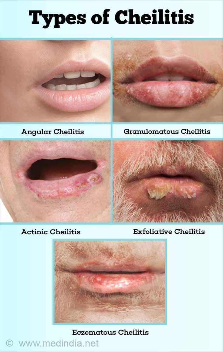 Cheilitis - Causes, Symptoms, Diagnosis & Treatment