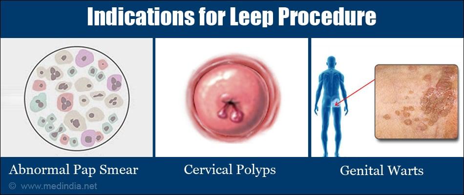 Human papillomavirus infection loop electrosurgical excision procedure