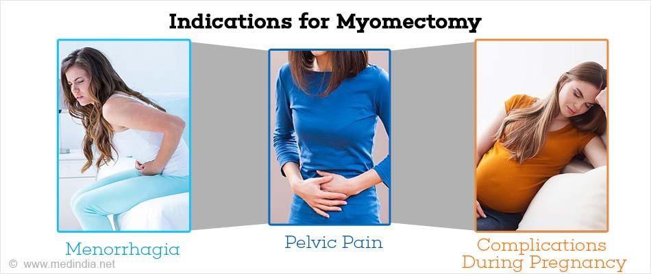 Myomectomy - Indications, Types, Preparation, Procedure & Complications