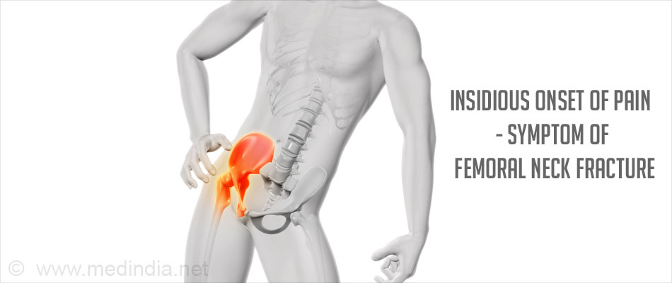 Fracture Neck of Femur - Risk factors, Types, Causes, Complications