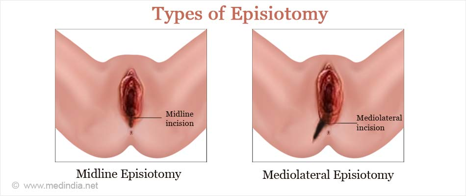 Episiotomy - Types, Risks & Complications