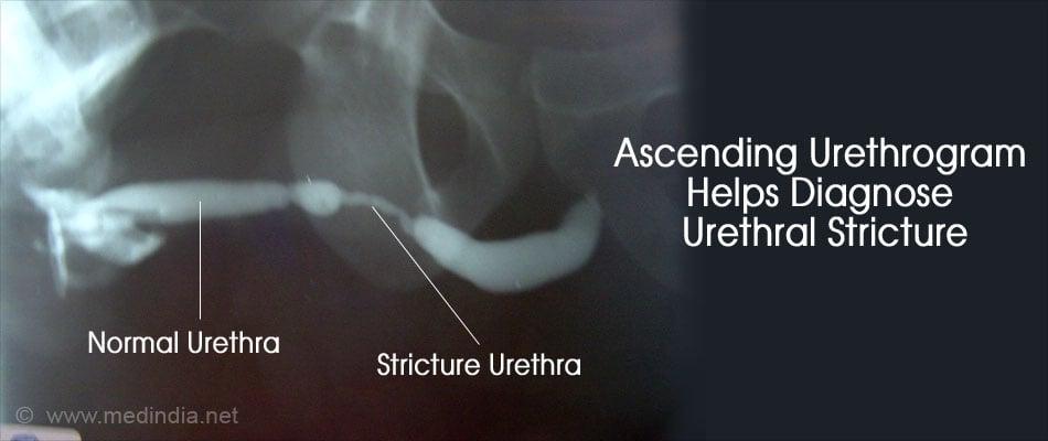Urethral Stricture Causes Symptoms Complications Diagnosis Treatment